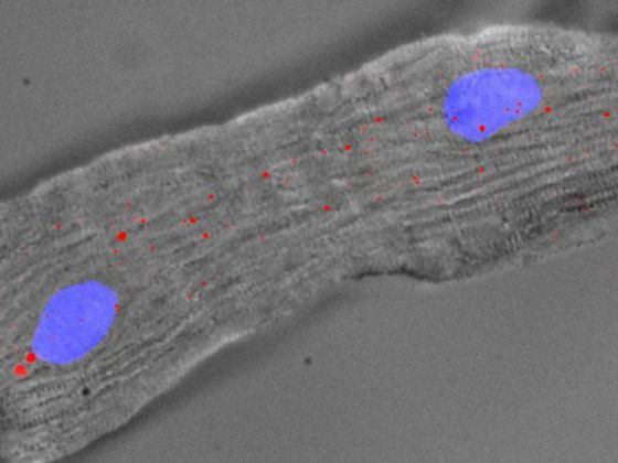 A mouse heart cell with 2 nuclei (blue) and Singheart RNA labelled by red fluorescent  dyes.