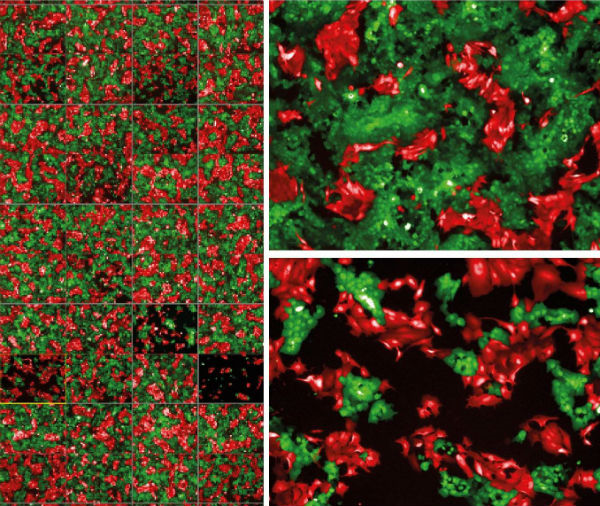 Personalised screening for drug sensitivity in patient-derived models. Green cells represent the primary tumour cells while the red cells represent metastatic tumours. The different micrographs represent the effect of drug treatment on primary versus metastatic tumour models derived from the same patient.